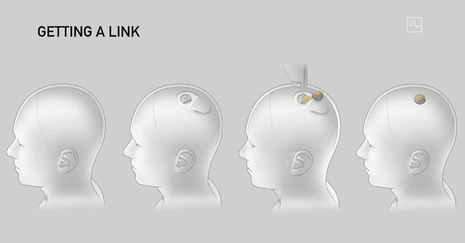 Εμφύτευμα εγκεφάλου Neuralink